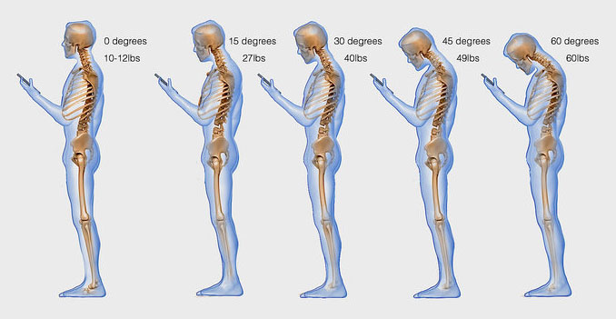 Text Neck: the posture taken when looking down at your mobile device
